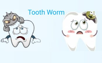 Tooth worm